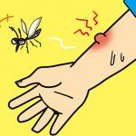 蚊に刺されたら腫れるのはなぜ?刺された後のケアと刺されない方法、刺されやすい人の傾向を解説!